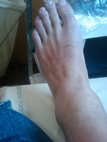 ankle1